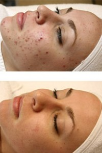 Eat Away Your Acne
